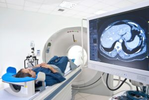 Focal epilepsy seizures linked to three brain regions, found with functional MRI
