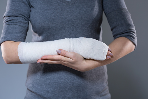 Wrist fractures could predict risk of more serious fractures in postmenopausal women