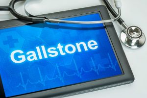 Cholecystitis (gallbladder inflammation): Causes, types and treatment