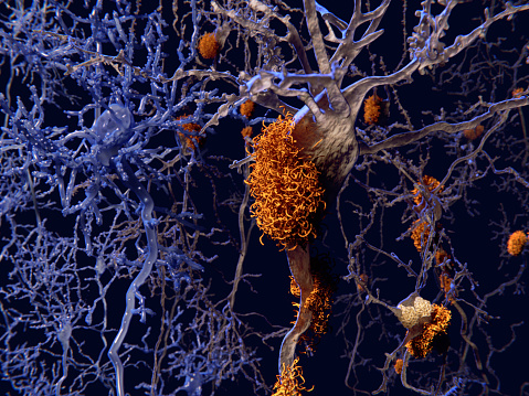Brain's immune system could fight off Alzheimer's: Study