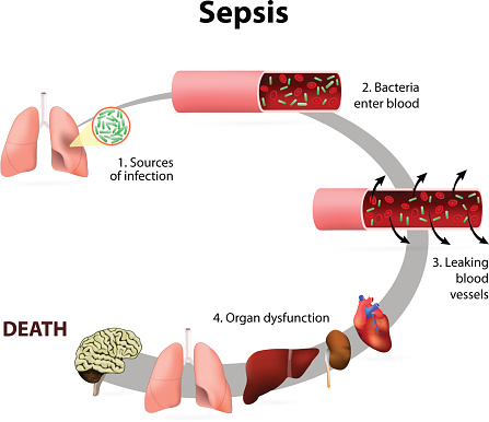 Sepsis, bacteremia and the risk of septic shock (life-threatening low blood pressure)