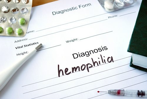 Hemophilia increases risk of joint diseases, bleeding into joints