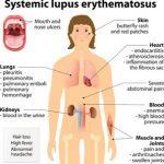lupus information