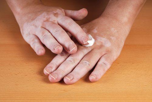 Vitiligo skin discoloration causes, symptoms and unique treatment