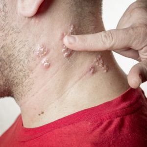 Shingles increases heart risks in seniors: Study
