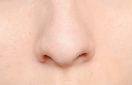 Nasal polyps can result from chronic inflammation due to asthma, infection and allergies