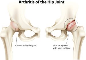 Osteoarthritis of the hip (hip arthritis) causes pain and may be invisible on x-ray
