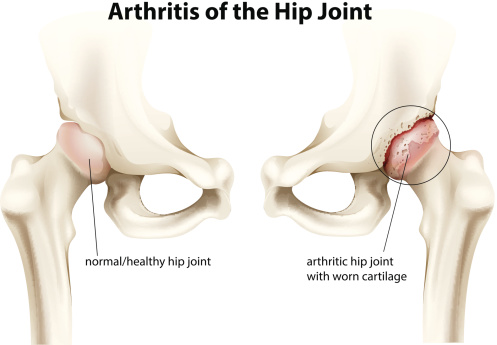 a study on the cause and treatment of knee osteoarthritis Pain and stiffness are symptoms read about diagnosis and treatment, and learn how osteoarthritis differs from rheumatoid arthritis medicine net com causes and treatment for joint stiffness and pain drug slows knee osteoarthritis progression study.