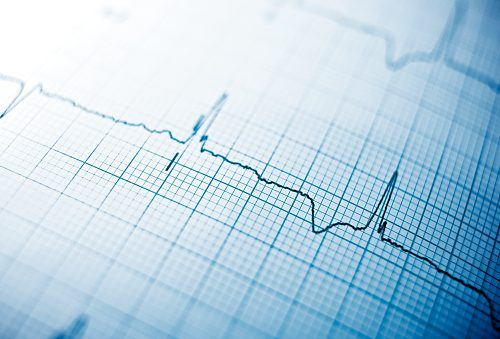 What causes rapid heartbeat after eating #1