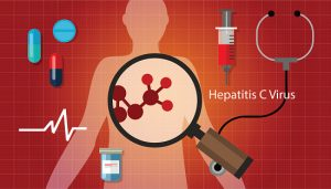 Hepatitis C treatment successful with combination therapy in those with advanced liver disease