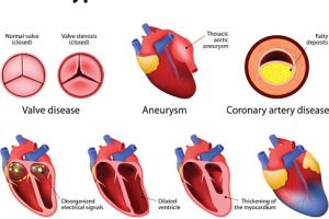 Lupus and pericarditis: Effect of lupus on heart health