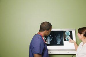 Lupus (SLE) raises osteoporosis bone fracture risk