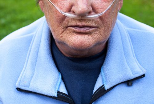 COPD raises cardiac death risk