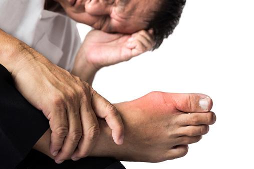 Gout may increase type 2 diabetes risk, women more vulnerable then men