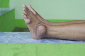 gout causes, symptoms, treatment and diagnosis