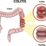 Inflammatory-bowel-disease-IBD-and-irritable-bowel-syndrome-IBS-may-share-symptoms-but-are-not-the-same