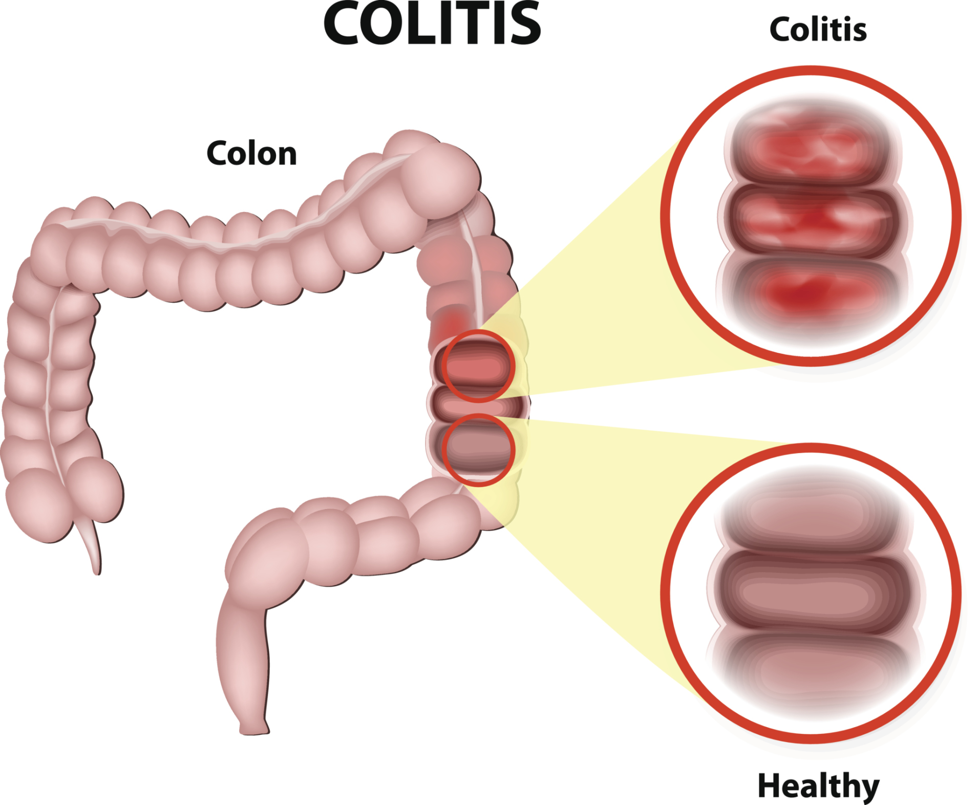 inflammatory bowel disease (ibd) and irritable bowel syndrome (ibs, Human Body