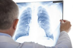 Scleroderma related interstitial lung disease can be treated with new promising treatment