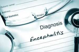 Encephalitis (brain inflammation) risk from viral infection higher with weak immune system