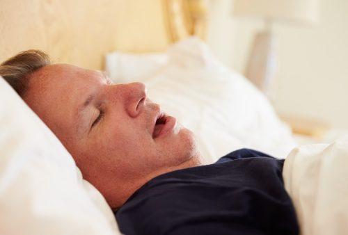 Overweight Man Asleep In Bed Snoring