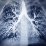 lupus affects the lungs