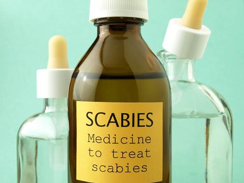 scabies treatment