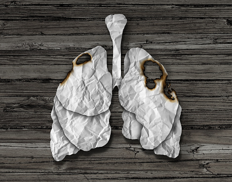 smokers with pneumonia should be screened for lung cancer