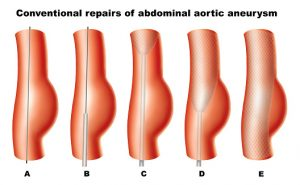 abdominal aortic aneurysm risk may decrease with eating more than, Human Body