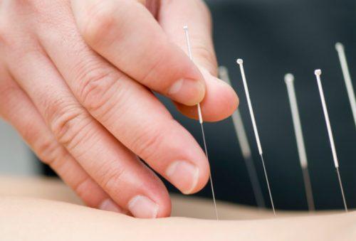 Acupuncture treatment fibromyalgia
