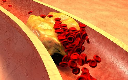 atherosclerosis-cardiovascular-disease-risk-causes-symptoms-and-treatment