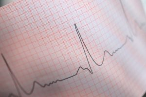 Cardiac sarcoidosis raises arrhythmia and heart failure risk