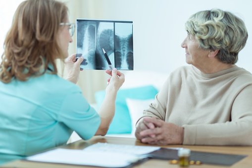 Celiac disease increases osteoporosis and bone fracture risk