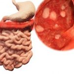 western diet and colitis