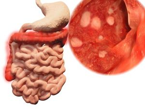 colitis triggered by gut bacteria changes caused by following a, Skeleton