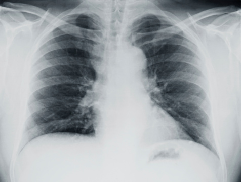 In cystic fibrosis patients, lung infection can be caused by bacterial infection