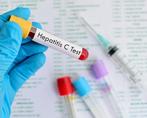 hepatitis-c-infection-increases-risk-of-cardiovascular-disease-cvd-stroke-and-liver-damage