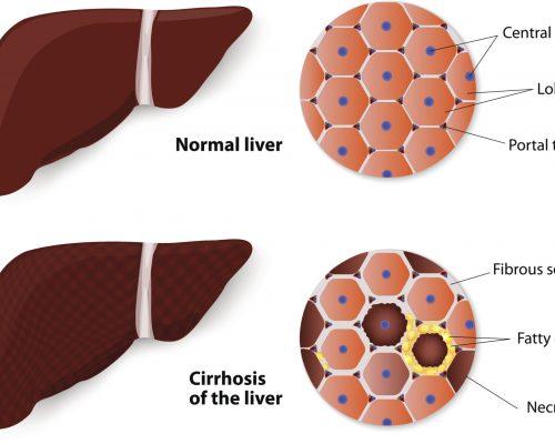 liver-fibrosis-menapausal-women