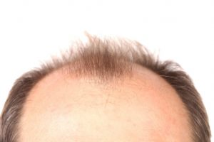 prostate cancer risk linked to male pattern baldness