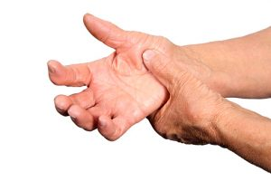rheumatoid-arthritis-risk-increases-with-exposure-to-occupational-textile-dust