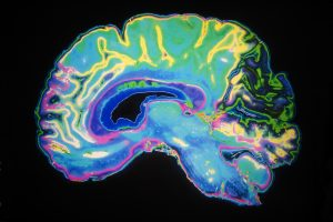 Schizophrenia and Alzheimer's disease risk linked to brain inflammation