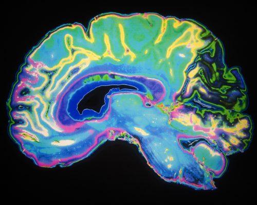 Schizophrenia and Alzheimer's disease risk linked to brain inflammation