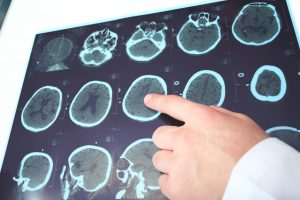 traumatic brain injury (tbi) linked with buildup in alzheimers plaques