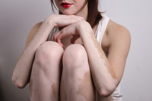 Vitiligo linked to simultaneously existing autoimmune diseases