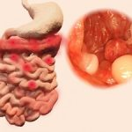 IBD-related colorectal cancer risk