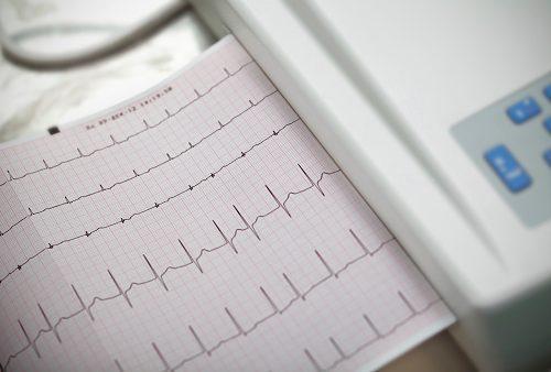 Atrial fibrillation (irregular heartbeat) risk and diabetes mellitus