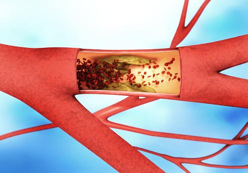Celiac disease patients may face higher coronary artery disease risk