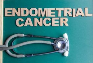 Endometriosis raises risk of endometrial cancer