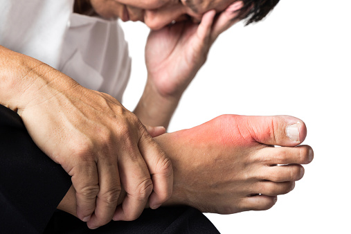 gout and osteoarthritis