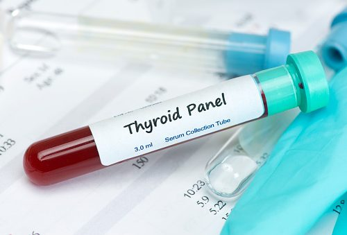 Hypothyroidism (underactive thyroid gland) treatment guidelines