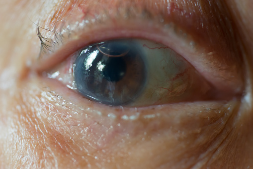 Prevent cataracts naturally home remedies